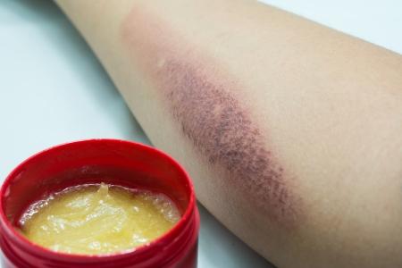 Arm met litteken en zalf creme Stockfoto