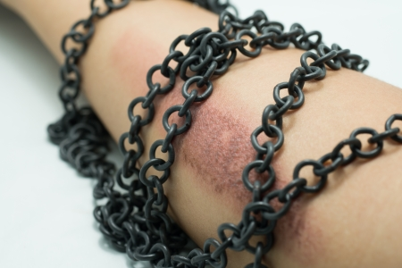 slave labor: Arm with scar and chain