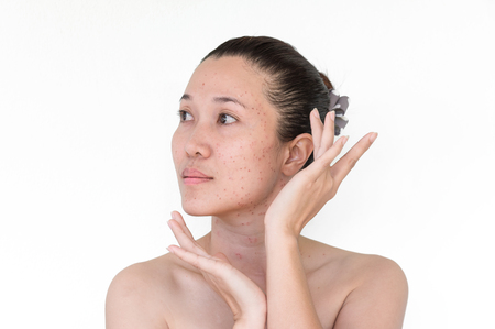 Burn spots or Scabs from laser treatment acne skin, freckles, freckles and dark spots on the face and neck of Asian women.