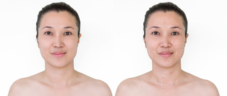 Beautiful young  woman with and without aging singes, wrinkles, blemishes, mole. Before and after laser treatment or plastic procedure, anti-age therapy. Zdjęcie Seryjne - 115671077
