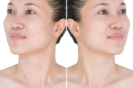 Beautiful young  woman with and without aging singes, wrinkles, blemishes, mole. Before and after laser treatment or plastic procedure, anti-age therapy. 免版税图像 - 115671081