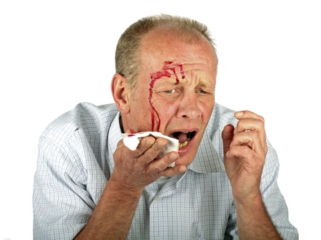 Wounded man with face full of blood Stockfoto
