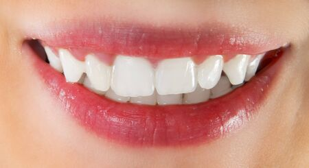 White healthy teeth of smiling woman Stock Photo - 4316120