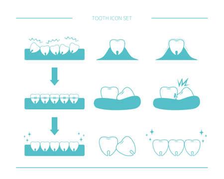 Vector illustration set of teeth. Caries. Orthodontics