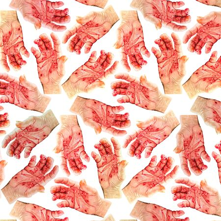 smeared hand: Blood hand background .