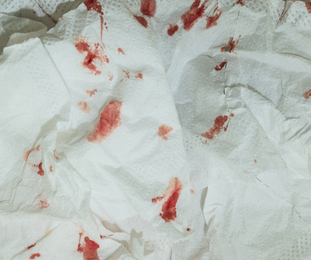 dire: Dried blood on toilet paper background Stock Photo