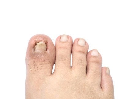 ail: Closeup ingrown nail at the big toe of a man isolated on white background with clipping path