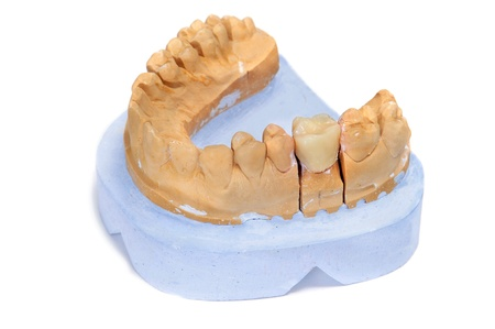 mastication: a dental mould with a prosthesis on a white background