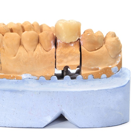 masticate: a dental mould with a prosthesis on a white background