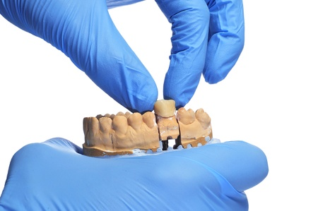 prosthesis: someone wearing gloves showing a dental mould with a prosthesis