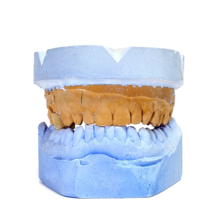 dentition: a dental mould on a white background Stock Photo