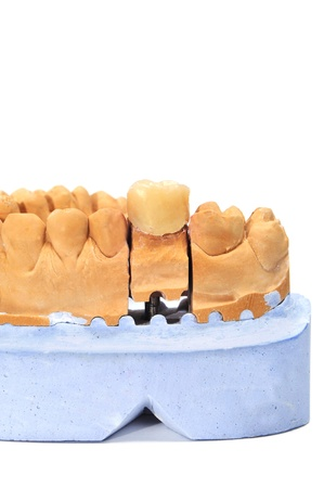 mastication: closeup of a dental mould with a prosthesis on a white background