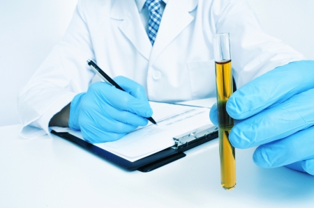 a man wearing white coat and blue medical gloves holding a urine sample in his hand Stock Photo