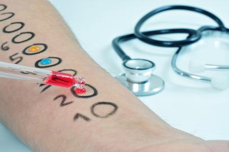 intolerancia: Primer plano del brazo de un hombre joven que está teniendo una prueba de alergia en la piel