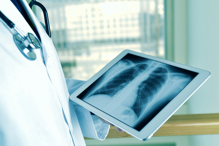 タブレット コンピューターで胸部を観察若い白人医師男のクローズ アップ