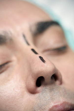 closeup of the head of a young caucasian man who is about to have a rhinoplasty, wearing a medical disposable cap and with surgery lines marked in his nose