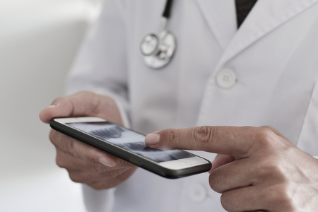 closeup of a young caucasian doctor man wearing a white coat checking a chest radiograph in a smartphone 版權商用圖片 - 84723676