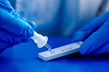 closeup of a man, wearing blue surgical gloves, placing the sample into the covid-19 antigen diagnostic test device, on a blue surface Archivio Fotografico