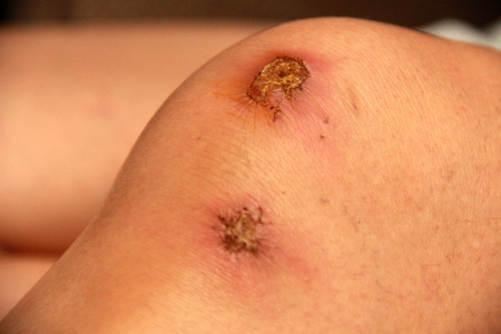gash: Scab and a scar on the knee