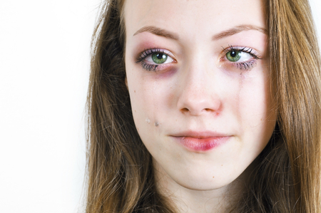 abusing: Crying girl with bruised skin and black eye caused by domestic violence