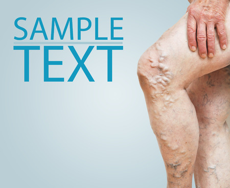 varicose veins: Legs with varicose veins and with space for text Stock Photo