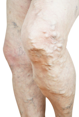 varicose veins: Varicose veins isolated on white