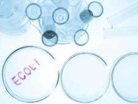 riesgo biologico: Cristalería de laboratorio de cultura biológica con creciente bacteria ecoli, bacterias de Escherichia coli