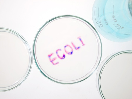 Biological culture laboratory glassware with growing ecoli bacteria, Escherichia coli bacteria  photo