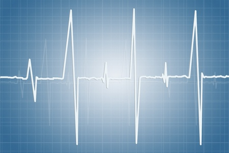 pulsating: Electrocardiogram - illustration of human heart activity