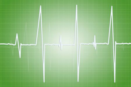cardioid: Electrocardiogram - illustration of human heart activity on green background