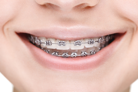A broad smile girl with metal braces. Closeup. Standard-Bild