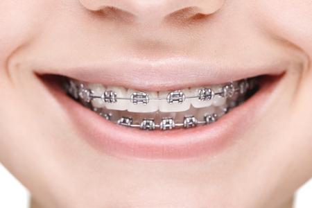 ceramiki: Szeroki uśmiech dziewczyny z szelkami metalowych. Zbliżenie. Zdjęcie Seryjne