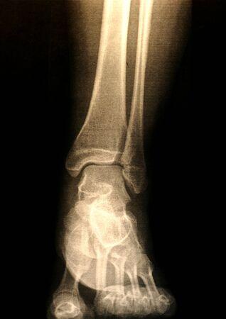 足の x 線写真
