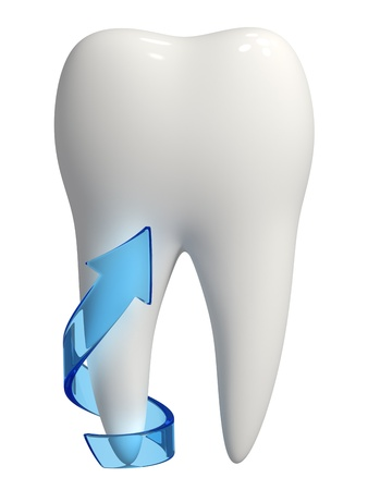 oral hygiene: 3d rendered photo-realistic white tooth with a blue semi-transparent arrow on one root pointing upward - Isolated