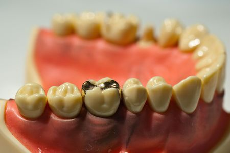 yellow teeth: Shiny smooth golden dental inlay