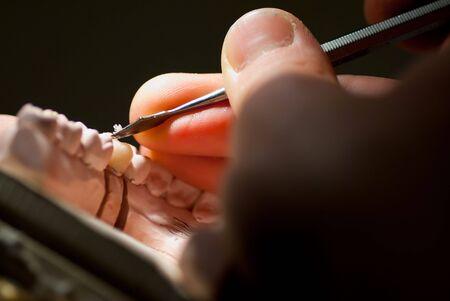 laboratorio dental: corona dental de vax