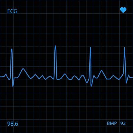 heart monitor: Heart Monitor Stock Photo