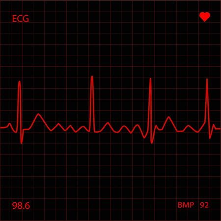 Heart Monitor Stock Photo - 6851777