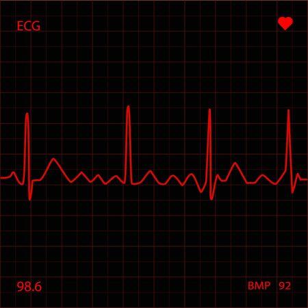 Heart Monitor Stock Photo - 6851777