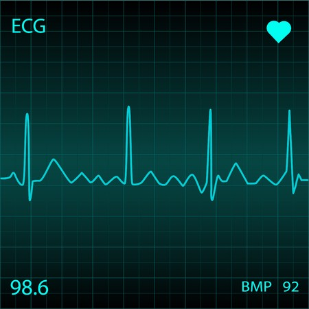 Blauw hart Monitor Stockfoto
