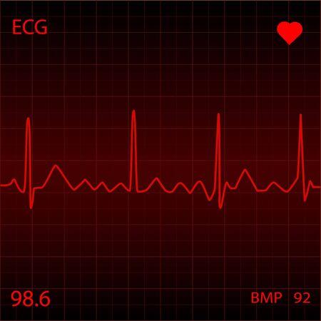 heart monitor: Red Heart Monitor Stock Photo