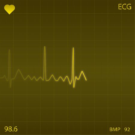 Image of a yellow heart monitor background. Stock Photo - 8032705