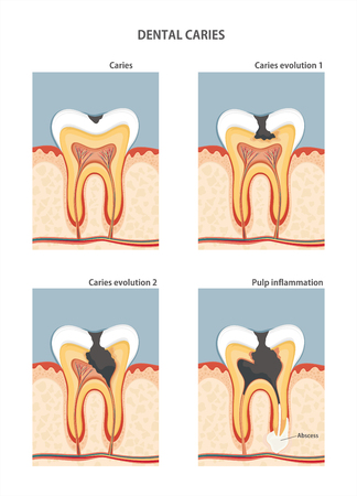 dental caries: Development of dental caries. illustration