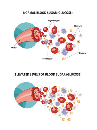bloodcell: Artery and diabetes Illustration