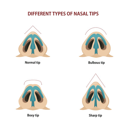 Different types of nasal tips