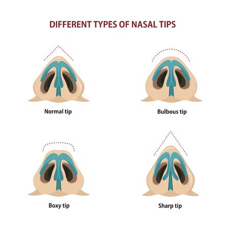 Różne typy końcówek nosowych