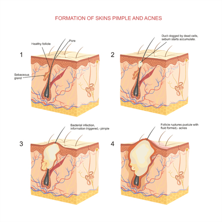 infected: Formation of skins pimple and acnes