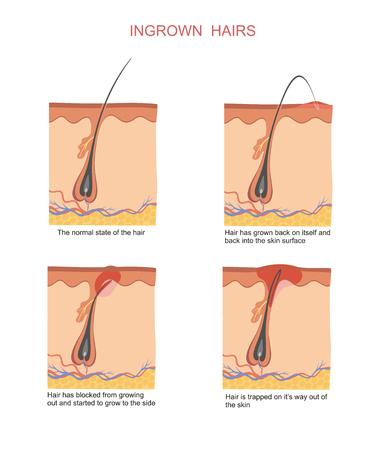abscess: Ingrown hairs when shaving and depilation