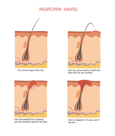Ingrown hairs when shaving and depilation