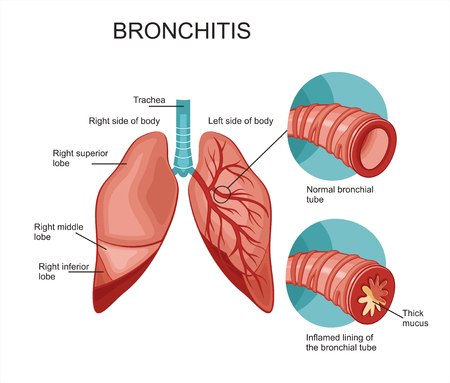 bronchitis: Diagram of the human lungs. Bronchitis Illustration